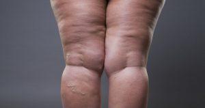 geschwollene, dicke Frauenbeine aufgrund eines Lipödems